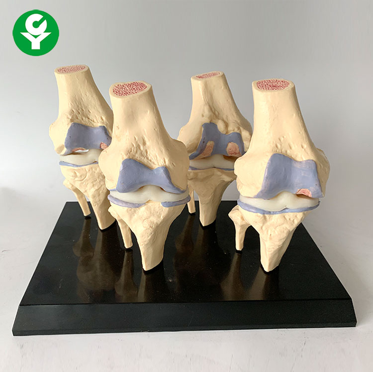 High quality PVC Transparent human Stage 4 knee joint <strong>model</strong> for studying human skeletal <strong>model</strong>
