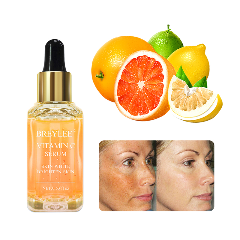 BREYLEE <strong>vitamin</strong> <strong>c</strong> <strong>serum</strong> 15ml <strong>for</strong> <strong>face</strong> free shipping