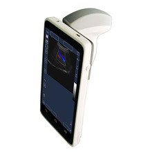 Handheld USG Color Doppler