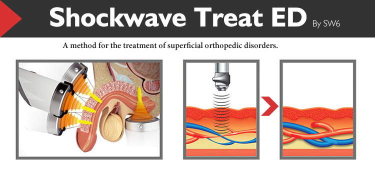 Electromagnetic shockwave therapy system portable shock wave machine