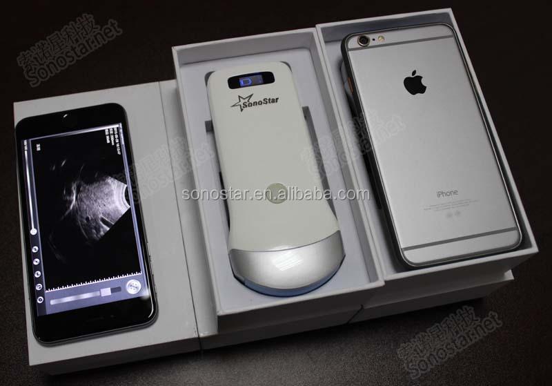 iphone ultrasound. uprobe-2 genggam nirkabel ultrasound scanner (bekerja pada ipad \u0026 iphone) iphone