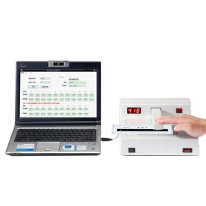 Black-White Densitometer/film Density meter/White Transmission Densitometer