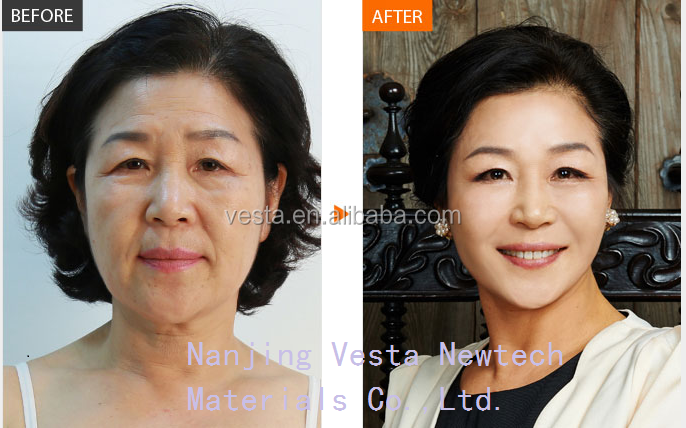 2ml HA filler Cross-linked hyaluronic acid injection dermal fillers
