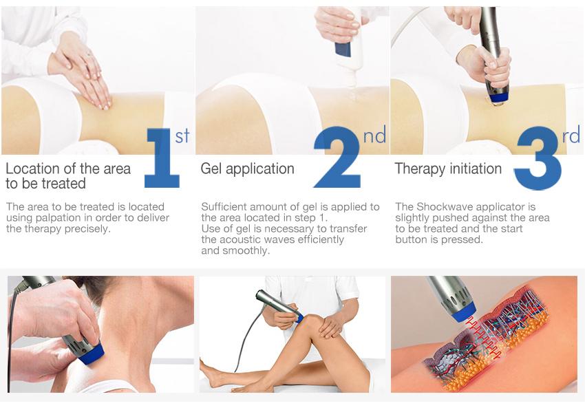 Orthopaedics Acoustic Shock Wave/shockwave therapy machine/zimmer shockwave