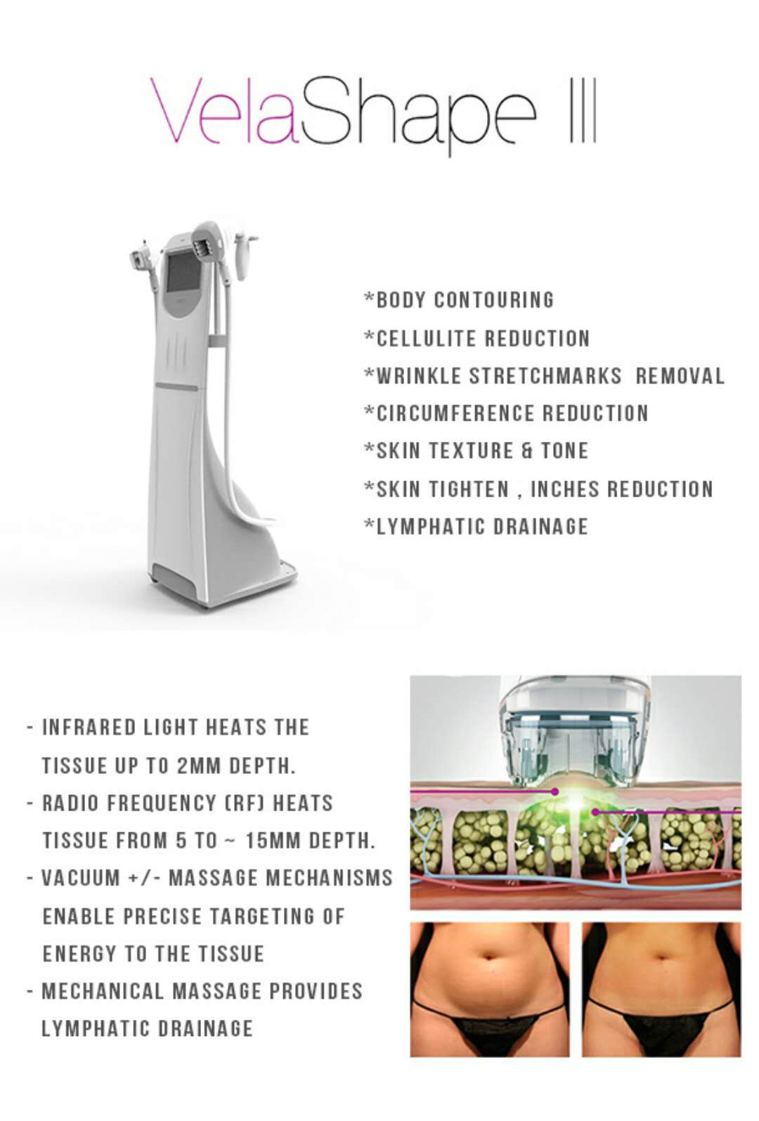 Syneron Velashape 3 Cellulite Reduction Slimming Machine