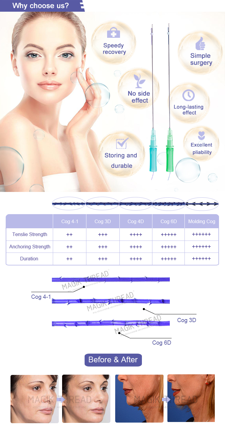 Absorbable sutures cog pdo medical thread lift korea feel tech with magik thread manufacturers