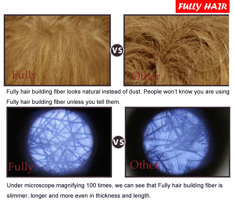 hair loss treatment essay Hair loss- an analysis and updated treatment drsaurabh gupta1 drrubina khatoon2 1,mds, oral and maxillofacial surgeon, axiss dental pvt ltd, bangalore.