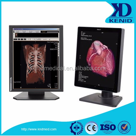 Hot sale grayscale CT scan LED monitor color diagnostic display in 2017