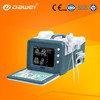 DW-3101A Hospital Ultrasound Equipment & Ultrasound Scanner & ultrasound machine portable