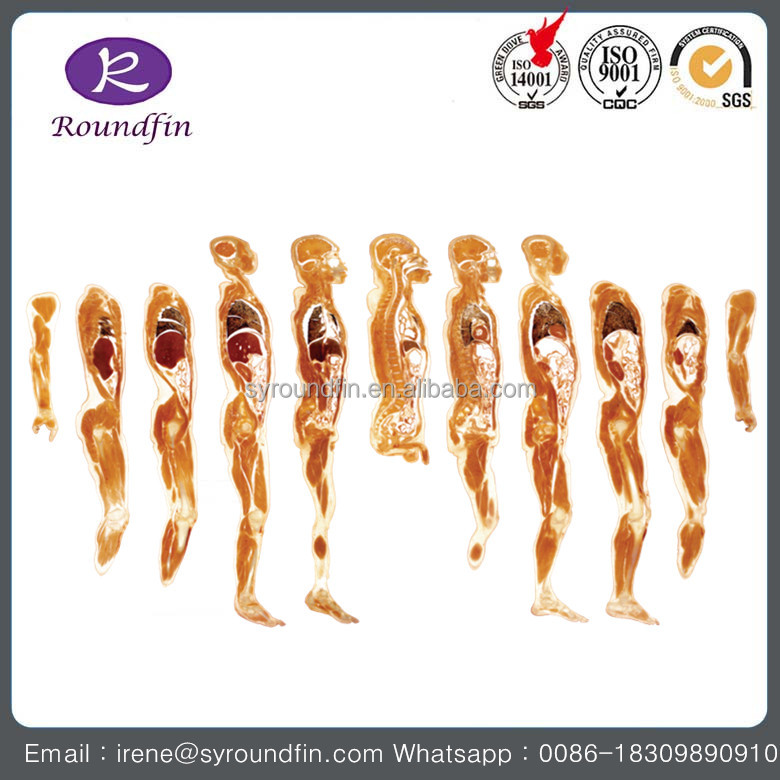 Medical model human whole body coronal plane of 6 slices