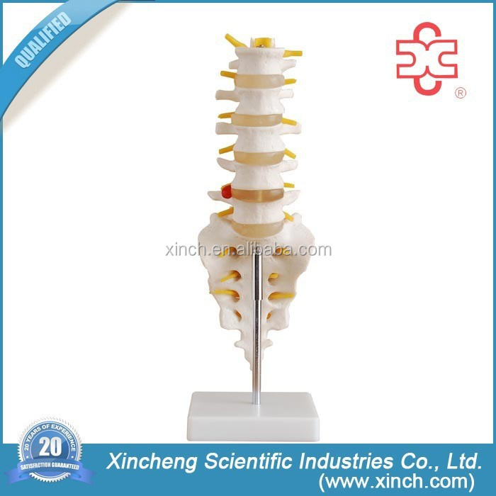 Life Size Lumbar Vertebrae With Sacrum Coccyx And Herniated Disc