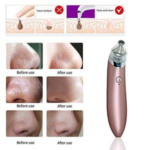 Acne Treatment Comedo Suction Device Microdermabrasion Machine Electric Vacuum Blackhead Remover
