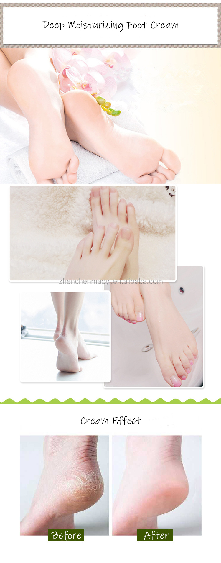 2019 high quality hands feet dry skin foot best whitening cream