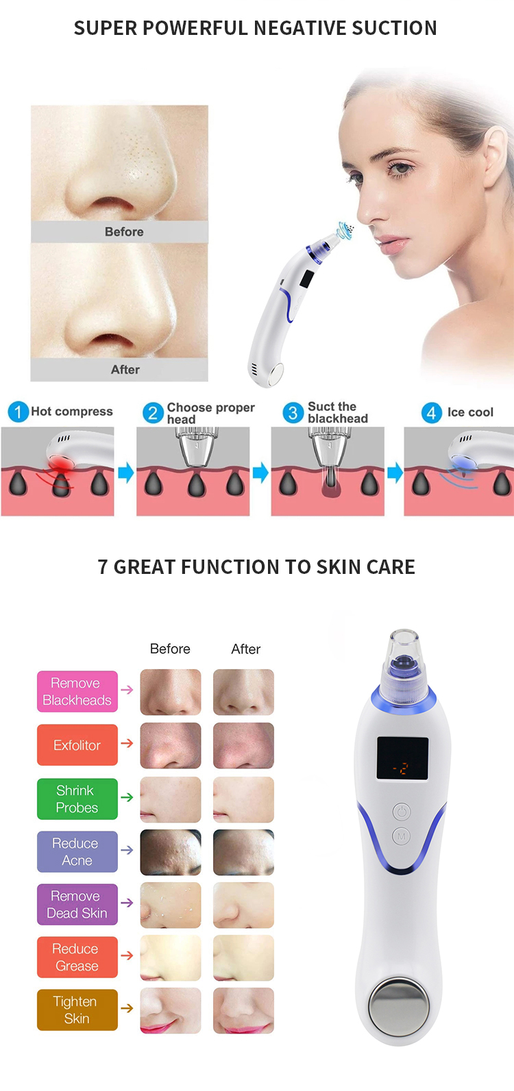 Amazon 2019 hot selling suction blackhead remover tool kit skin care blackhead pore minimizer machine