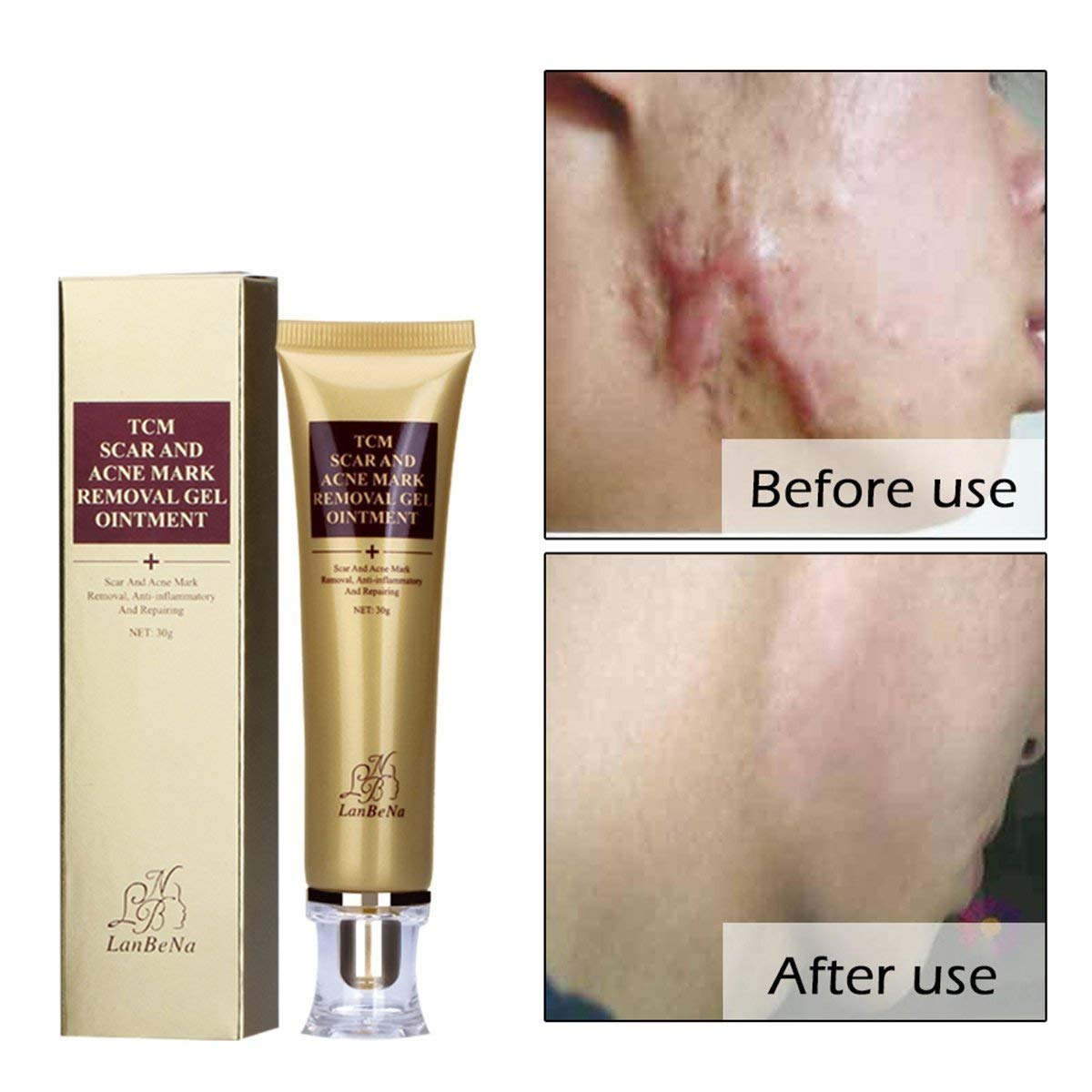 Buy Classikool 30ml Scar Acne Spot Remover Cream Serum With