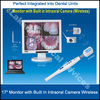 Wired/Wireless Intraoral Camera for Dental Units