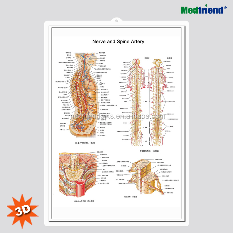 3D Medical Human Anatomy Wall Charts / Poster - Brain Blood Vessel Disease