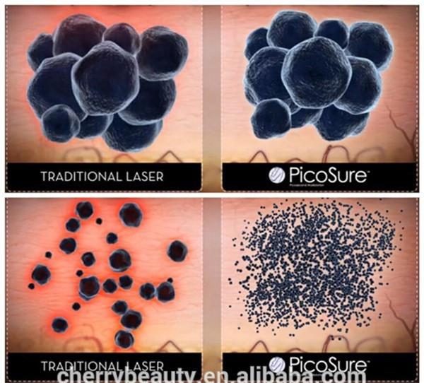 Hoge piekvermogen PTP modus Meerdere handstukken Revlite laser diverse kleuren tattoo inkt machine pigment verwijdering