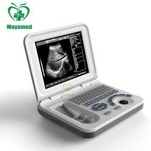 Sistem Ultrasonik MY-A008B Notebook 10.4 inch LED Laptop Semua Digital Ultrasound Scanner