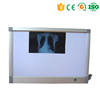 MA1149 100% China original high quality medical x ray film viewer and x-ray film