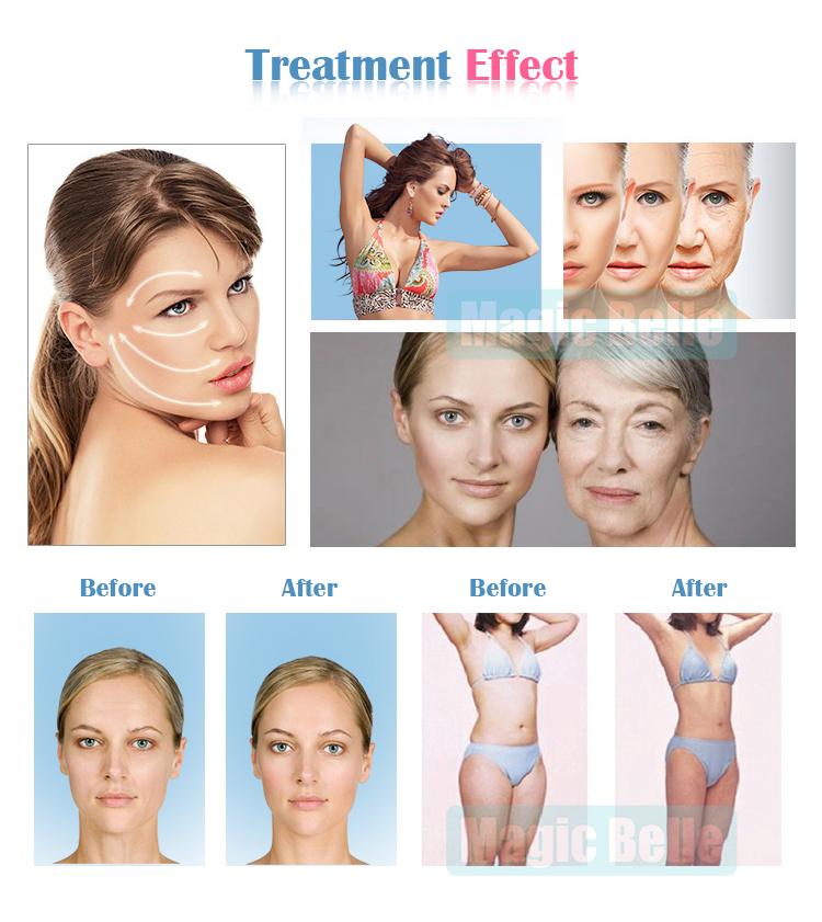 El más nuevo hifu Spray Motion Wrinkle Removal Ultrasonido Spray Face Skin  reafirmante Hifu Body Slimming Breast Care Machine para Salon