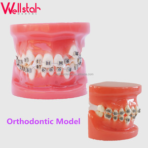 Cheap price dental teeth teaching study model crowded teeth full Orthodontic model