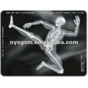 picture relating to Printable X Rays titled Electronic Printable A4 Sheet Professional medical Polyurethane Movie X-ray Movies - Purchase Health-related Polyurethane Motion picture,Kodak X-ray Motion picture,Polaroid Motion picture Product or service upon