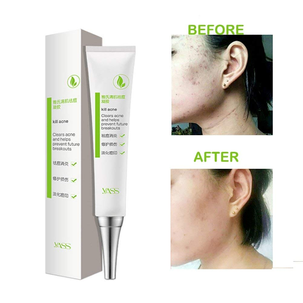 Buy Ofanyia Anti Acne Pimple Cream Moisturizing Repair Acne Scars