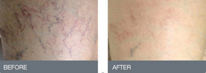High quality spider veins 980nm vascular remover