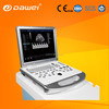 portable color doppler ultrasound diagnostic system & portable ultrasound system