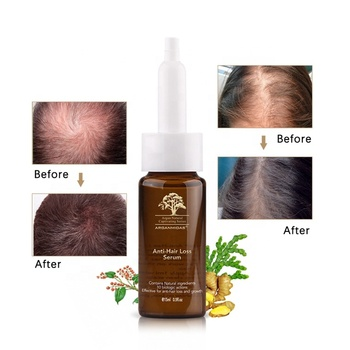 Private Label Instant Hair Growth Serum Products Blue Copper Peptide Best Hair Tonic For Hair Regrowth