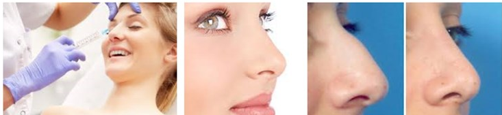 Hot sell CE injectable hyaluronic acid dermal filler for face remove wrinkle