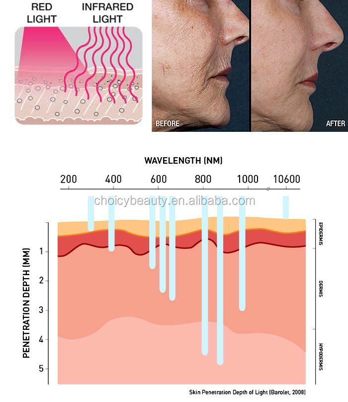 Acne Scar Treatment Skin Whiten And Tighten Led Pdt Led ...