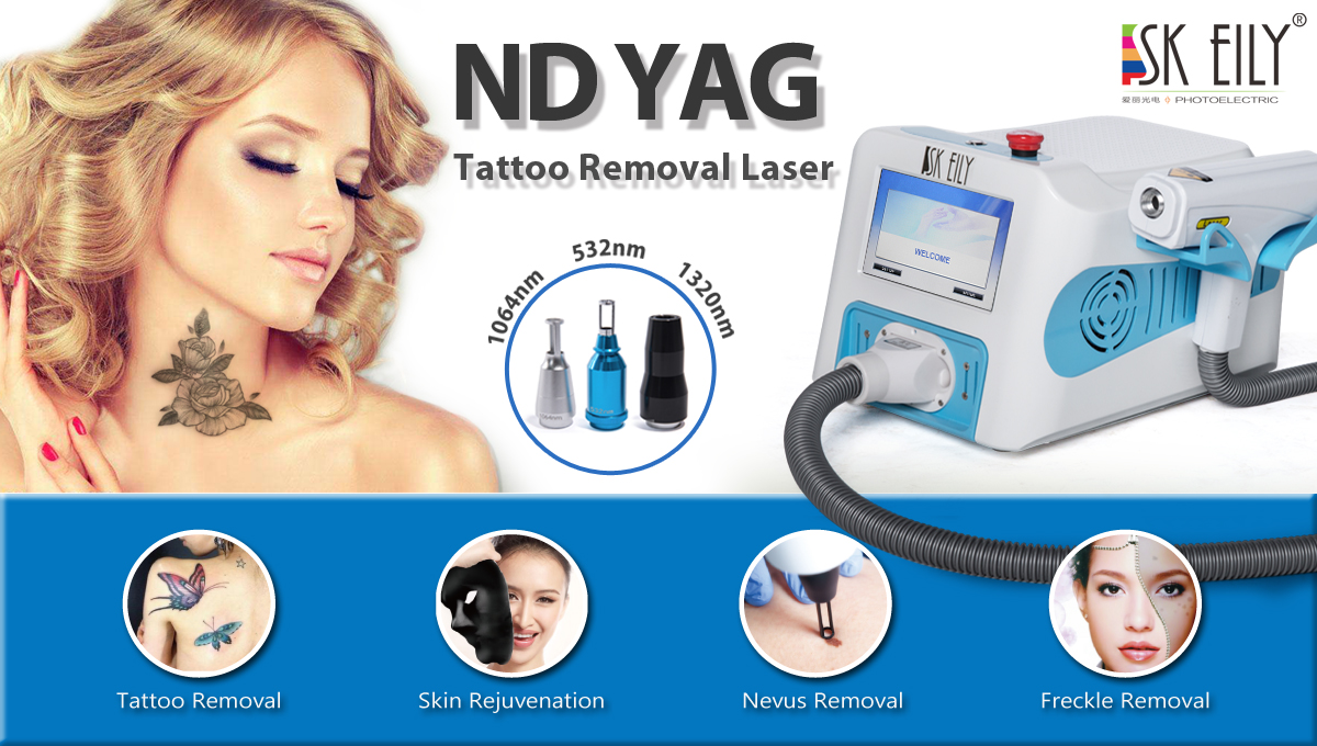 Portable foot switch freckle removal nd yag laser
