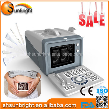 buy home pregnancy ultrasound machine