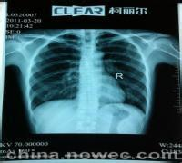 2015 konida medical film thermal x-ray film medical dry imaging film x ray dry agfa x-ray film 14x17