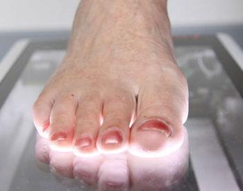 3d Foot Standing Scanner Instant 3d Scan Orthoshaper