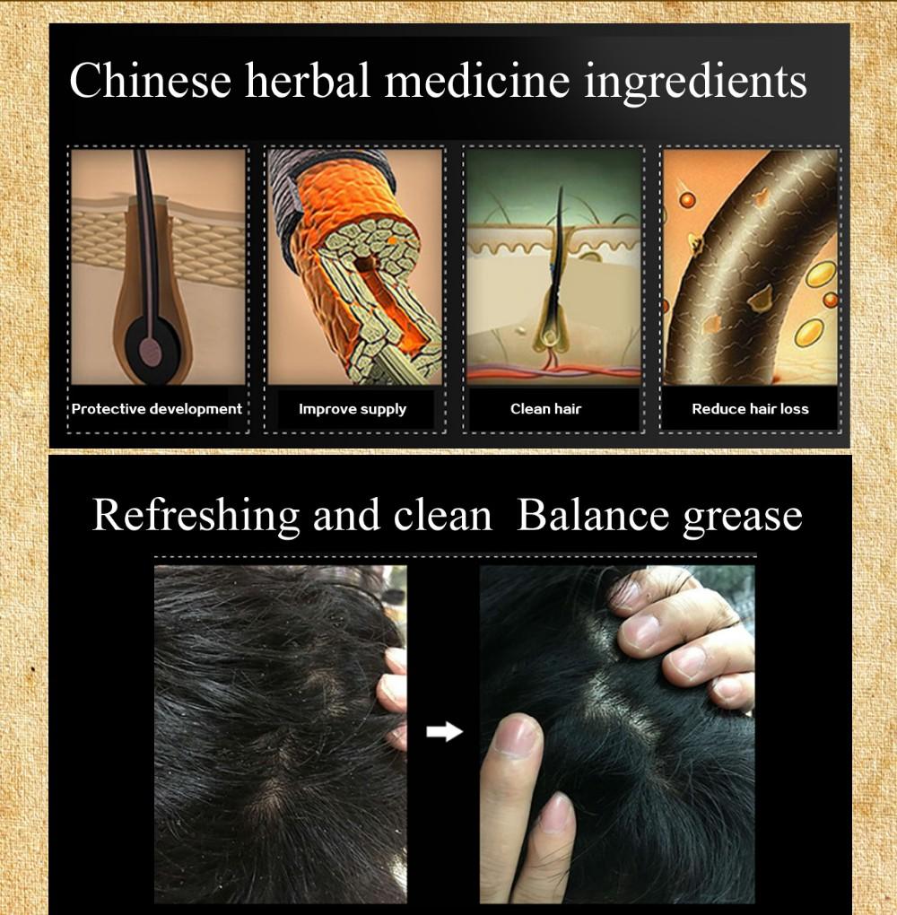 Herbal hair nurturing anti-hair loss shampoo