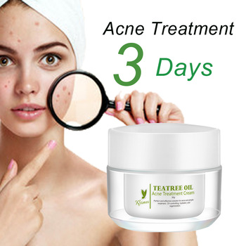 wholesale alibaba pimple acne treatment for oily skin acne peelingwholesale alibaba pimple acne treatment for oily skin acne peeling removing anti acne cream gel for