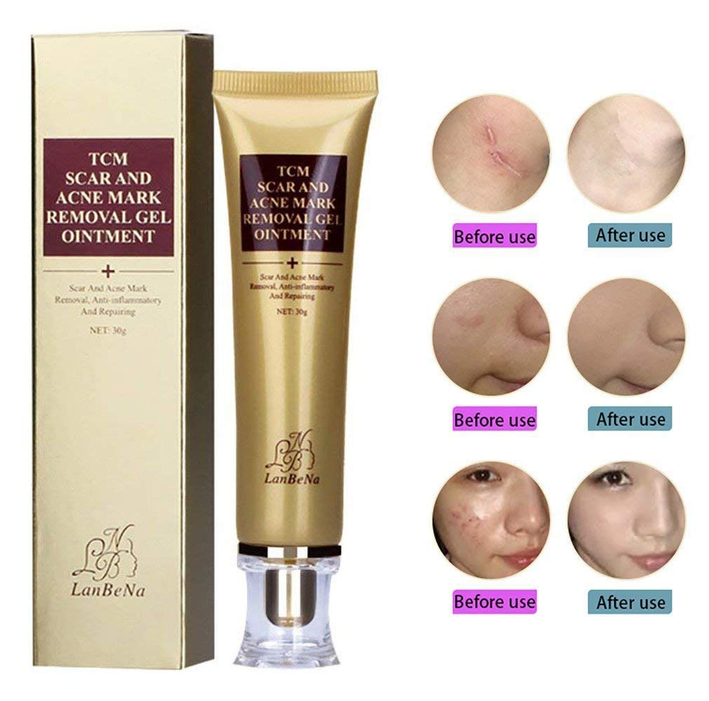 Cheap Scar Cream For Acne Find Scar Cream For Acne Deals On Line