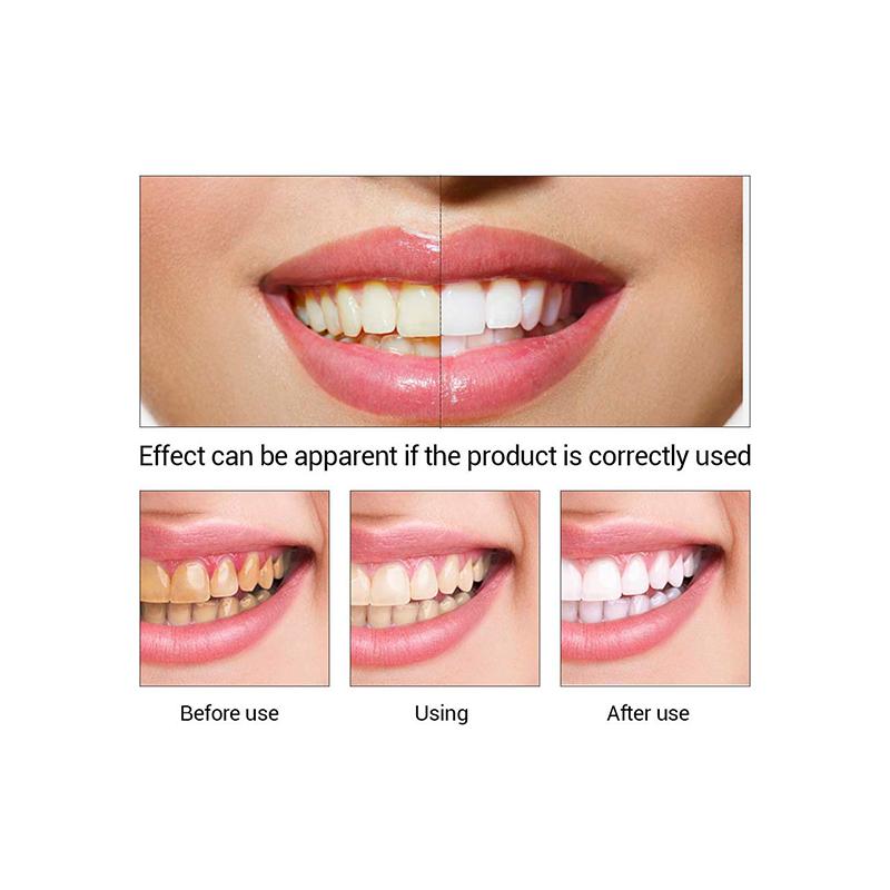 LANBENA tanden whitening essentie witte tanden gratis verzending