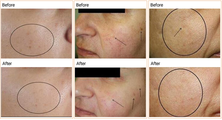 Geneo + Oxygenate Skincare CO2 Anti-aging Therapy Face Super Care Geneo Machine