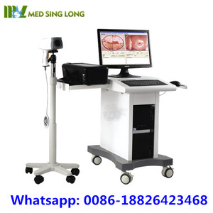 Guangzhou 2017 Trolley Digital Camera Vaginoscope Colposcope & Video Colposcope for Sale