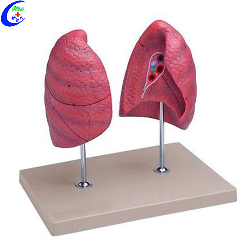 lung anatomic model.jpg