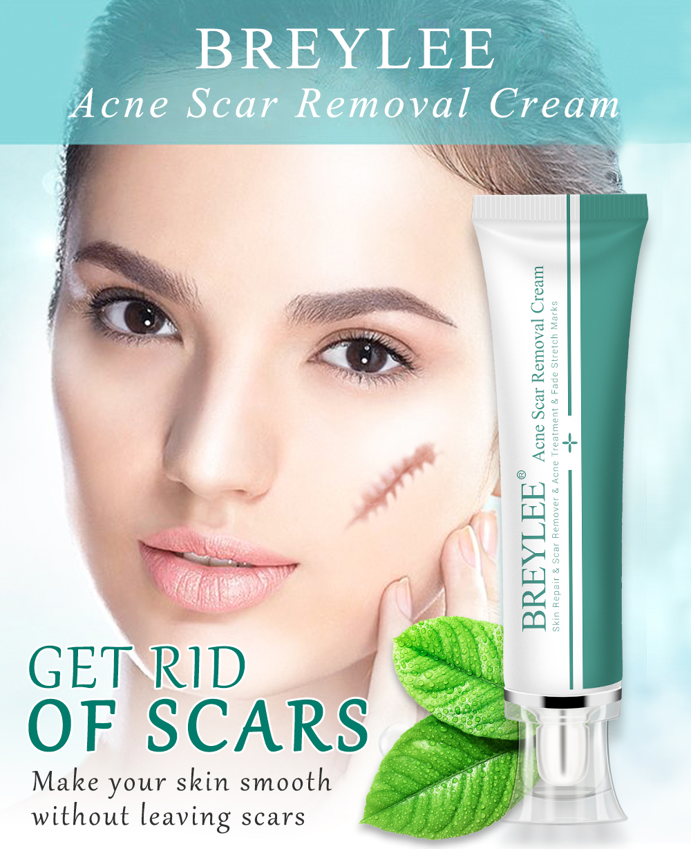 Breylee Acne Mark Scar Removal Cream Free Shipping Buy Acne Scar
