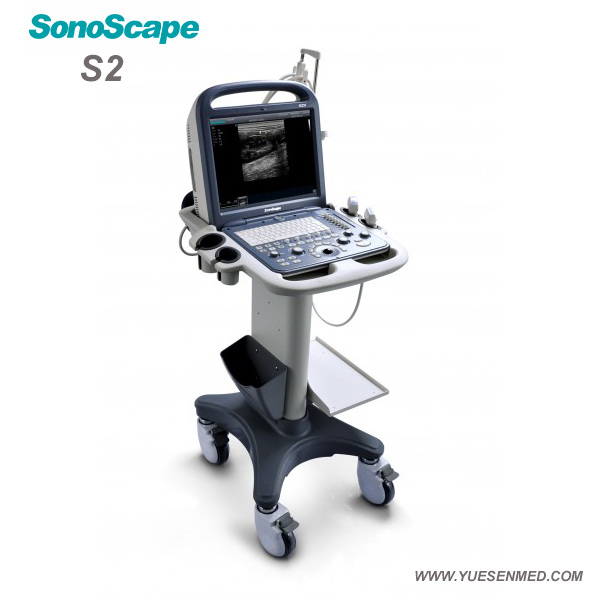 Hot Sale Body Scanner Portable Color Doppler Ultrasound Machine Sonoscape S2