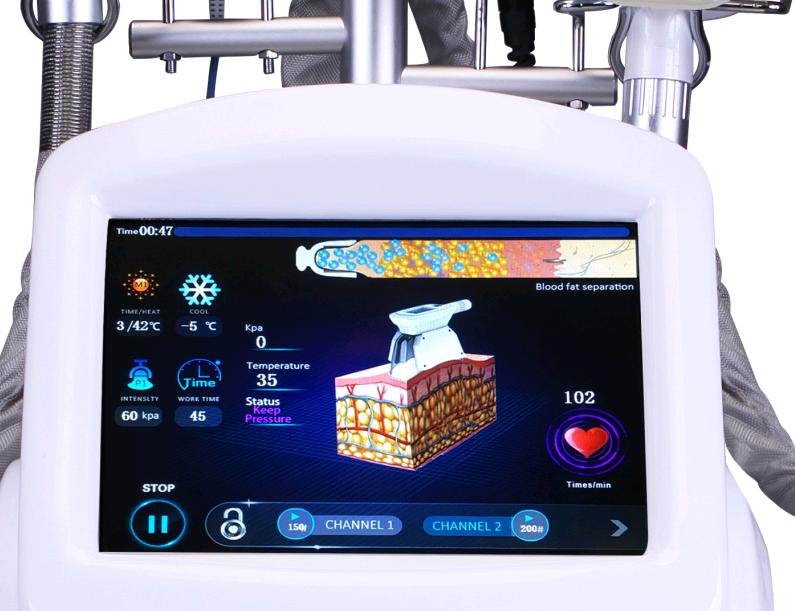 Último médico cavitación crio bien adelgazamiento de frecuencia de radio crio el contorno del cuerpo crio la lipólisis máquina