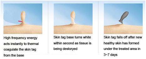 Easy Skin Tag Removal Device Brand Name