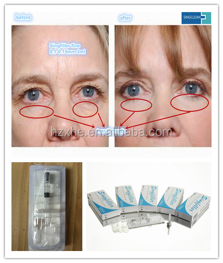 Chinese injection plastic cosmetic sodium hyaluronate acid gel HA derm filler singfiller fine 0.1-0.15mm 2ml tears through