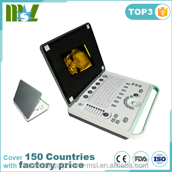 2016 Latest brand new 3d laptop ultrasound machine/cheap portable ultrasound machine MSLPU34P